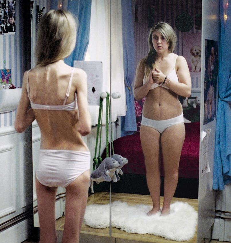 The Mirror – Anorexia,  Direttore Creativo  Martin Stadhammar